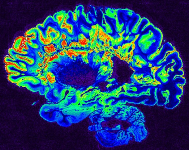 Side-view scan of a human brain on a dark-blue background; the cortical folds of the brain are colorized blue, light green, red, and yellow