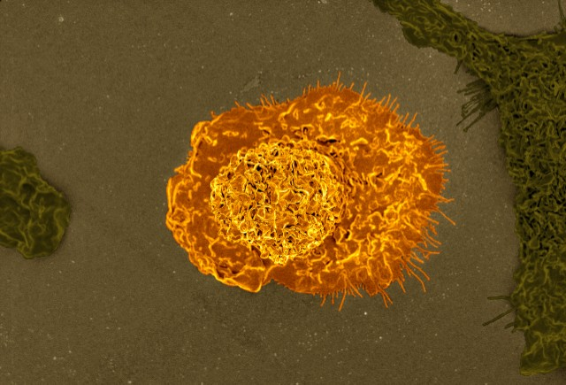 A colorized scanning electron micrograph of a macrophage