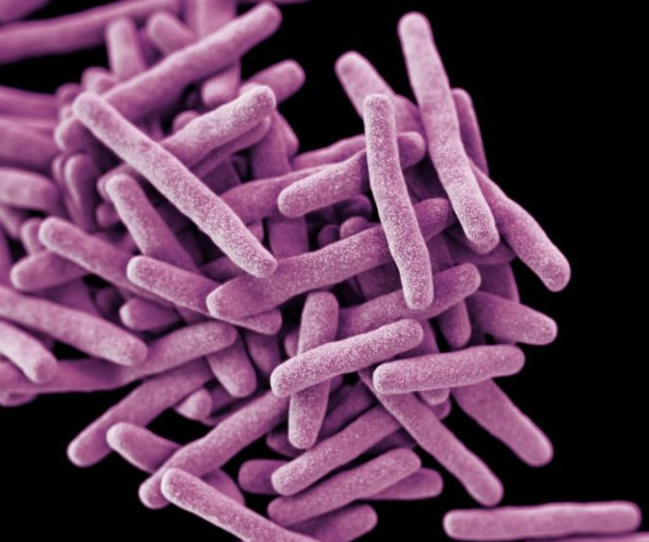Rod-shaped Mycobacterium tuberculosis bacteria (colorized purple) on a black background