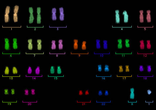 M-FISH idiogram of a diplold set of normal human male chromosomes, which are dyed in diverse colors